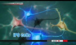 Transplantasi Sel Punca Otak IPS Pertama